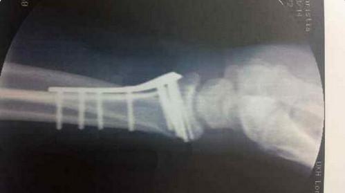 Снимок руки Тото Вольффа, после падения с велосипеда